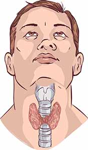 Illustration Showing a Man With An Enlarged Thyroid.