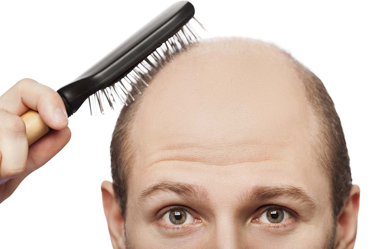 Receding Hairline Diet And Insulin The Surprising Hair Loss Link