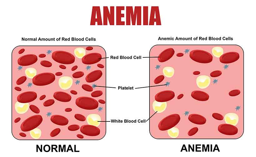 Diagram Showing How Iron Deficiency Anemia Works.