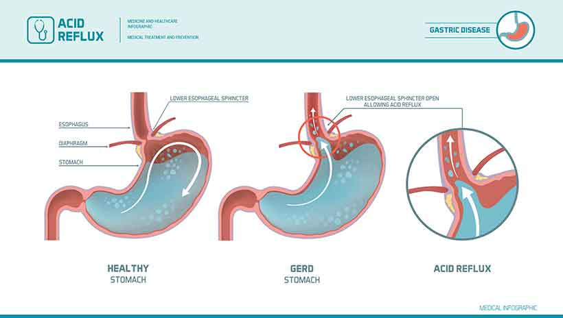 An Infographic Showing How Acid Reflux Happens.