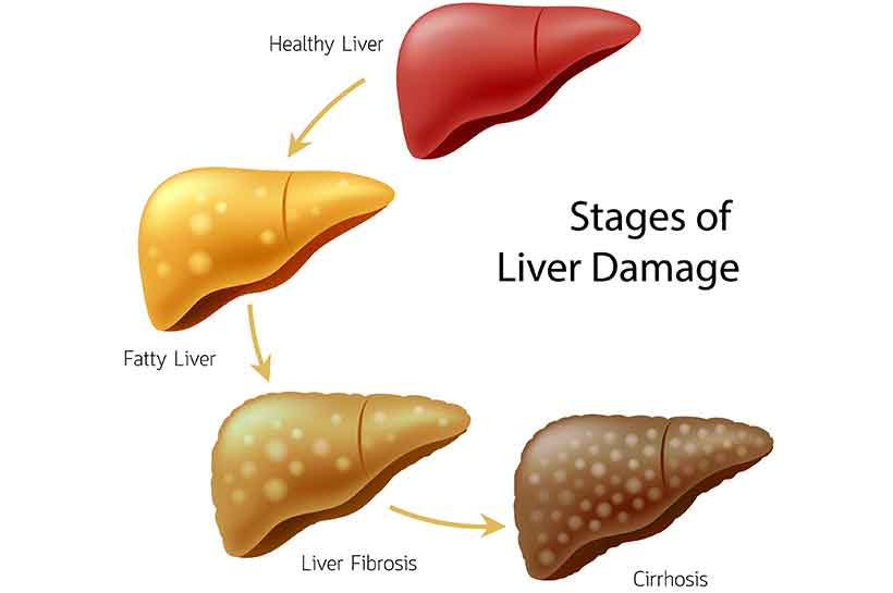 Diagram Showing the Different Stages of Liver Damage From NAFLD.