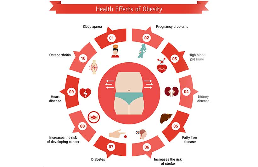 An Infographic Showing Diseases and Medical Conditions Related To Obesity.