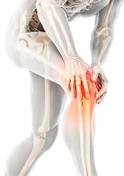 An Image of Osteoarthritis Showing the Knee joint and Inflammation.