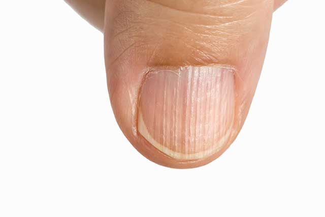 Finger Nails With Vertical Ridges and White Lines.