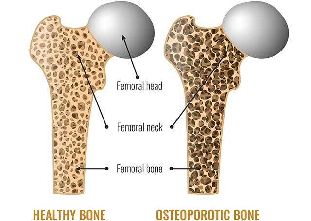 Diagram Showing the Differences Between Healthy Bone and Osteoporotic Bone.