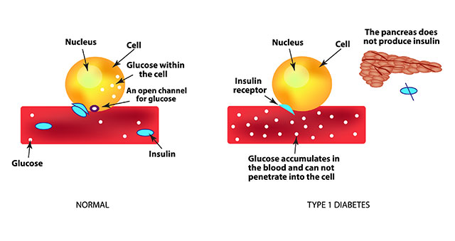 Diagram Showing What Happens Biologically With Type 1 Diabetes.