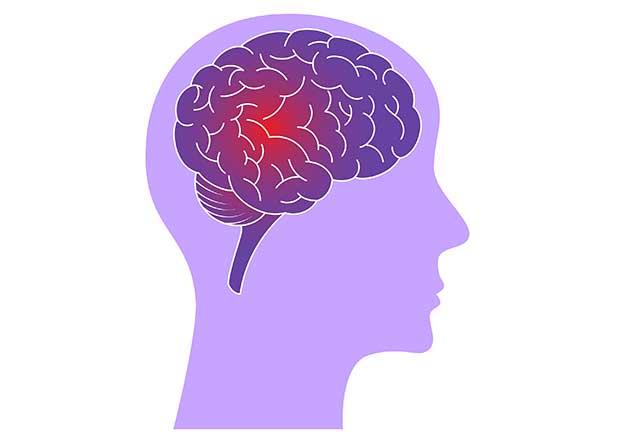 Illustration of Brain With Epilepsy.