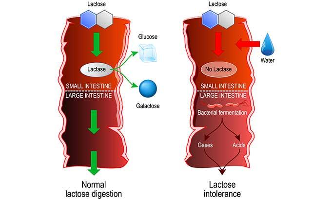Infografía que explica la intolerancia a la lactosa.