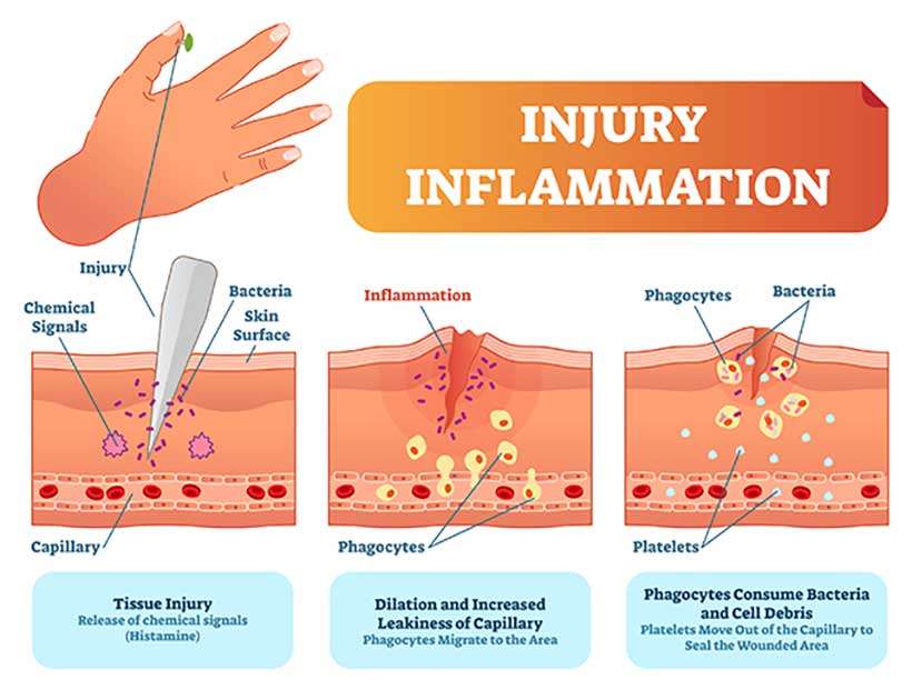 Infographic Showing the Wound Healing Process Response To Injury.